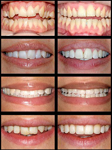 braces-before-after2